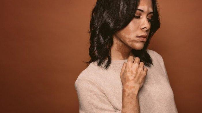Ilustrasi penderita vitiligo non segmental