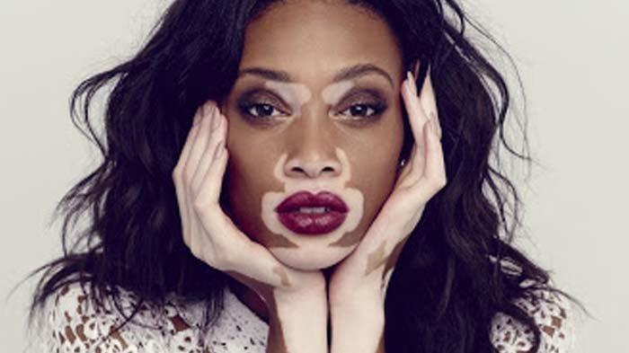 Faktor Genetik Memengaruhi Munculnya Vitiligo, Dokter: Faktor Autoimun dan Eksternal Juga Pengaruhi