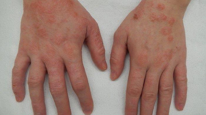Ilustrasi penyakit dermatitis