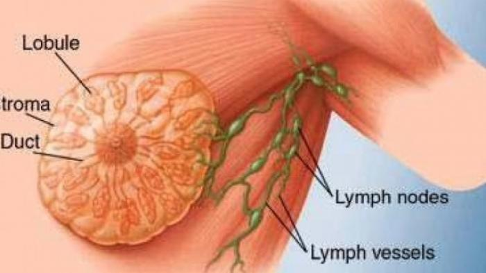 Ilustrasi penyakit kanker payudara