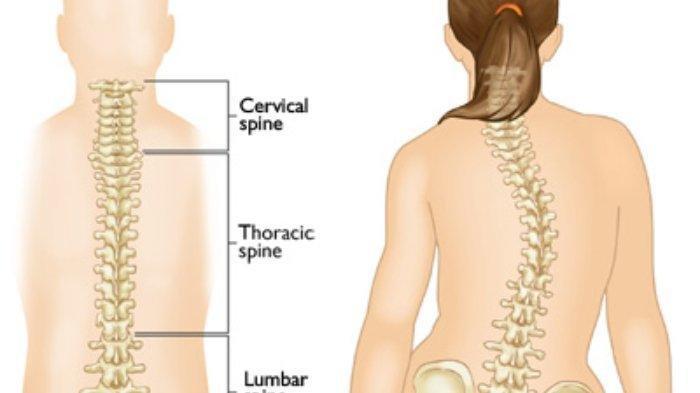 Ilustrasi penyakit skoliosis