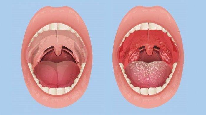 Ilustrasi penyakit tonsilitis atau amandel