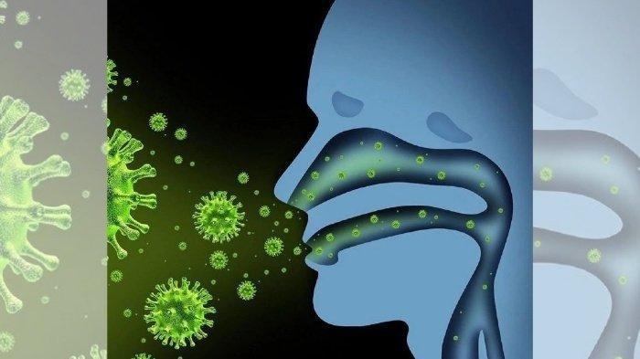 Ilustrasi virus polio menyebar melalui droplet, bisa akibatkan post-polio syndrome beberapa tahun setelah terinfeksi