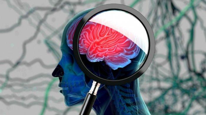 Dokter Sebut Secara Epidemiologi Alzheimer Paling Sering Ditemukan Dibanding Jenis Demensia Lainnya
