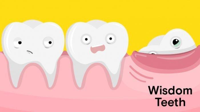 Ilustrasi pertumbuhan gigi bungsu yang dapat menimbulkan nyeri