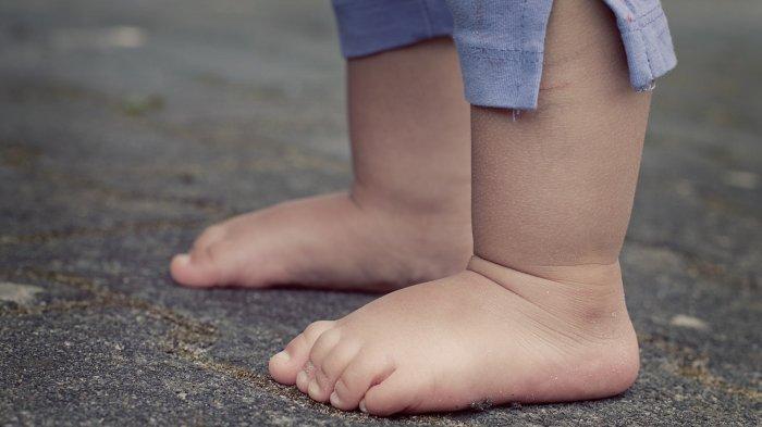Mengenal Kelainan Bentuk Kaki Anak, Ada yang Wajar dan Ada yang Harus Diwaspadai