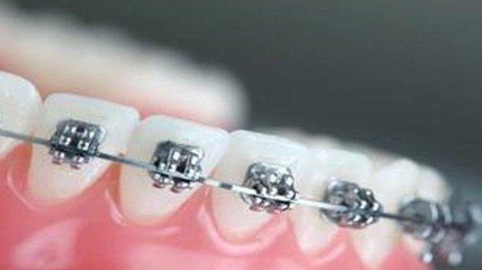 Ilustrasi prosedur pemasangan kawat gigi, menurut Dr. drg. Eddy Heriyanto Habar, SpOrt (K)