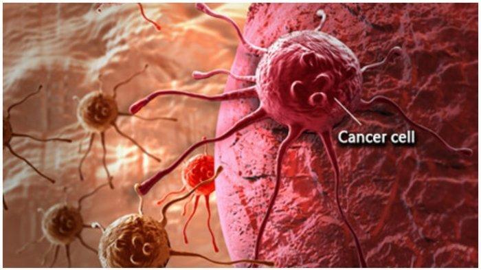 Ilustrasi sel kanker yang menyebar