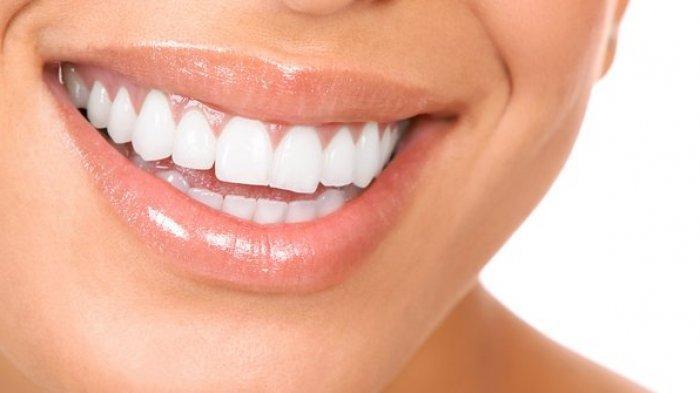 Ilustrasi setelah pemotongan gigi