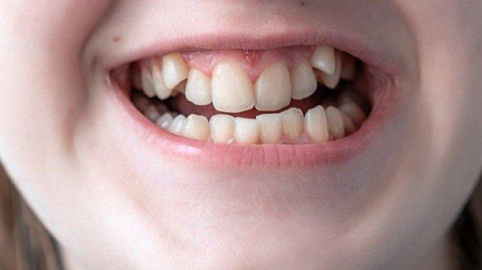 Ilustrasi susunan gigi anak yang tidak rapi.