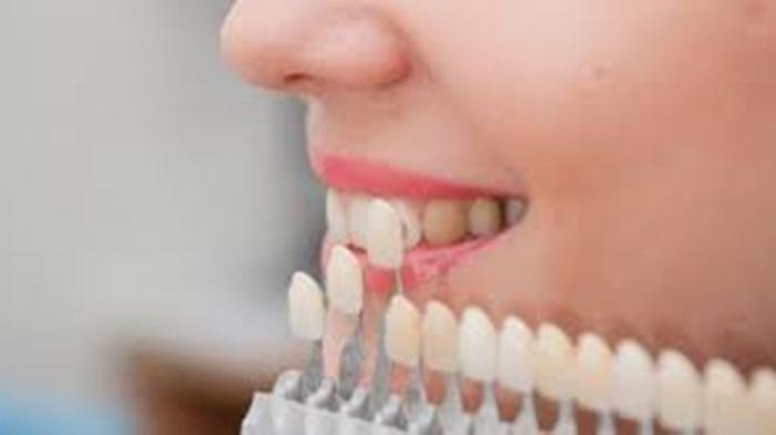 Apa Perbedaan Treatment Bleaching dan Veneer Gigi? Simak Penjelasan drg. Ummi Kalsum, MH.Kes.,Sp.KG