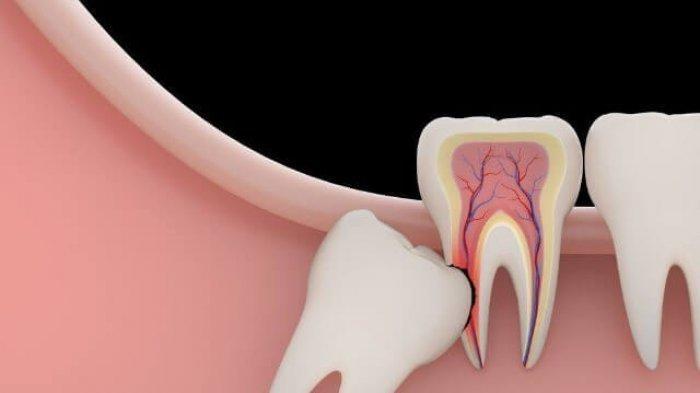 drg. Nabila Amalia Beberkan Efek Samping Impaksi Gigi ngga Akar Gigi yang Mencuat