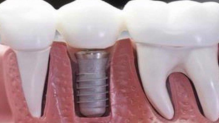 Ilustrasi implan gigi, menurut drg. Andi Tajrin, M.Kes., Sp.BM (K)