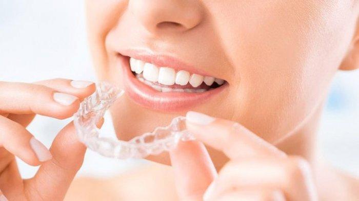Mengenal Invisalign, Alat Modern yang Berfungsi Memperbaiki Gigi Beraantakan