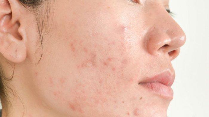 ilustrasi jerawat pada wajah, simak cara penanganan jerawat menurut dr. Kardiana Purnama Dewi