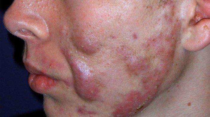 dr. Kardiana Sebut Acne Conglobata Tergolong Jenis Jerawat yang Susah Diobati