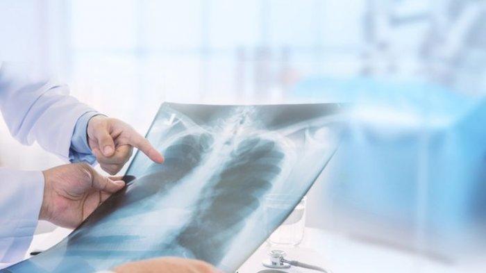 ilustrasi masalah paru