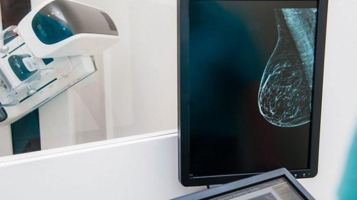 Apa yang Menyebabkan Kanker Payudara Bisa Terjadi? Bagaimana Ciri-cirinya? Simak Ulasan Dokter