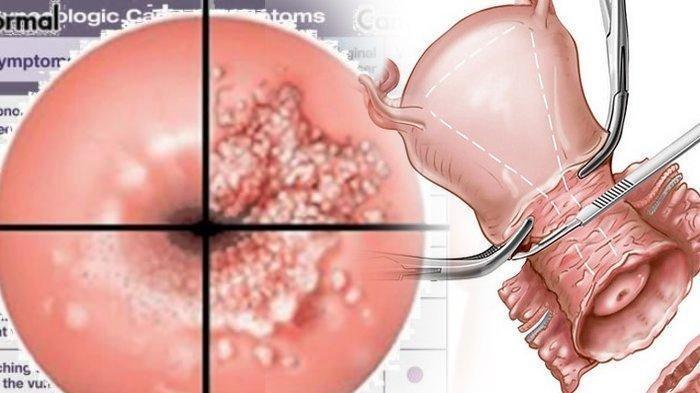 Ilustrasi kanker serviks