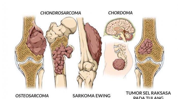 Sama Halnya dengan Kanker Lain, Kanker Tulang Perlu Diwaspadai, Ini Gejalanya