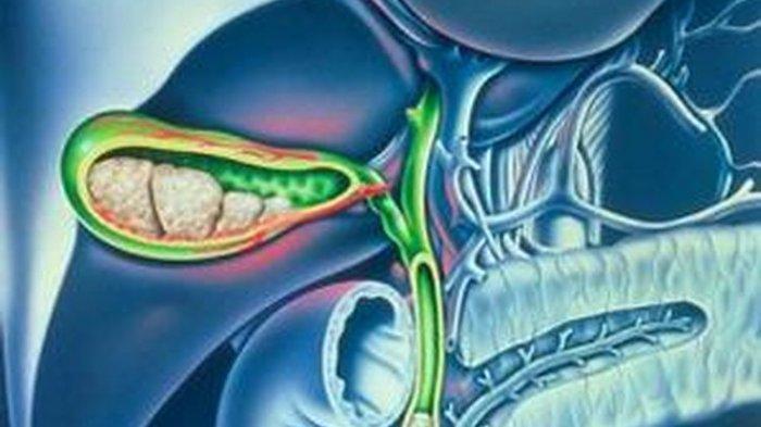 Dokter Beberkan Keluhan Pasca-operasi Kantung Empedu yang Harus Diwaspadai