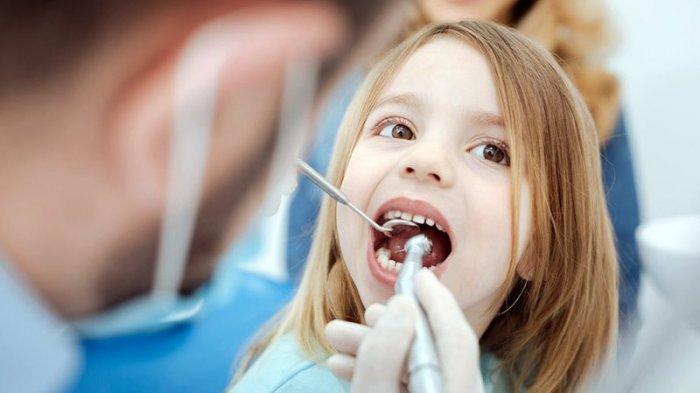 drg. Anastasia Ririen Jelaskan Penyebab Gigi Hitam pada Anak, Termasuk Akibat Karies