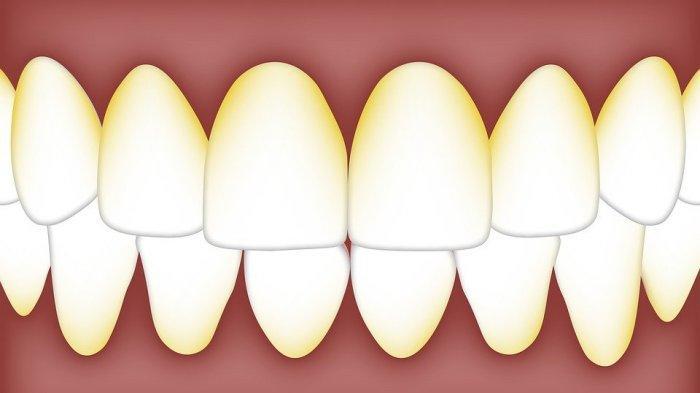 ilustrasi karang gigi, drg. R. Ngt. Anastasia Ririen sebut memiliki tekstur yang keras seperti batu