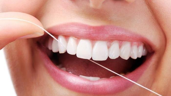 Penggunaan Dental Floss Bisa Melepaskan Plak Pada Gigi, Simak Ulasan drg. R. Ngt. Anastasia Ririen