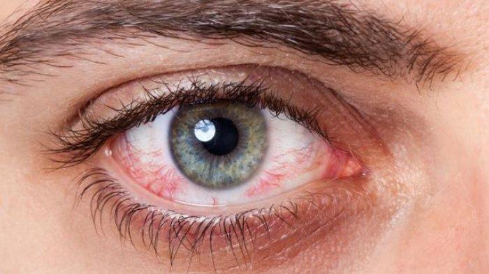 Ilustrasi mata merah akibat terlalu lama menatap gadget, simak ulasan  dr. Dedi Purnomo, Sp.M