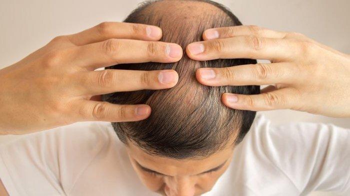 Kebotakan yang Terjadi Akibat Kerontokan Rambut Bisa Terjadi Sementara Ataupun Permanen
