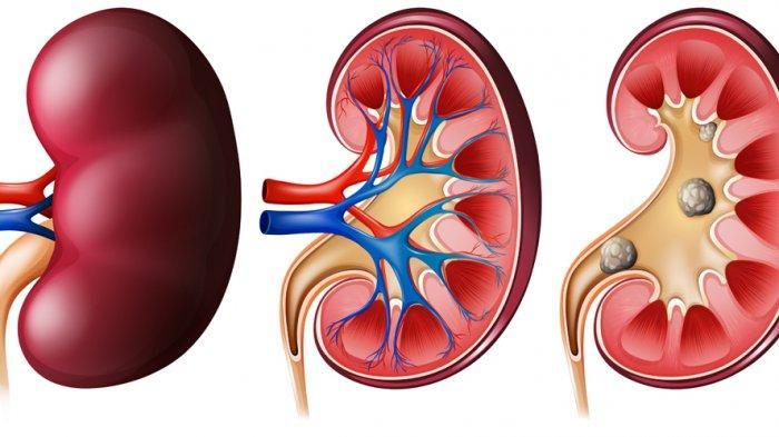 Kinerja Ginjal Terpengaruh dengan Kadar Kolesterol yang Berlebihan? Berikut Ulasan dr. Tan Shot Yen