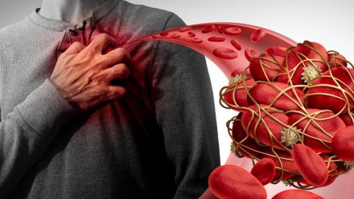 Ilustrasi penyumbatan pembuluh darah jantung