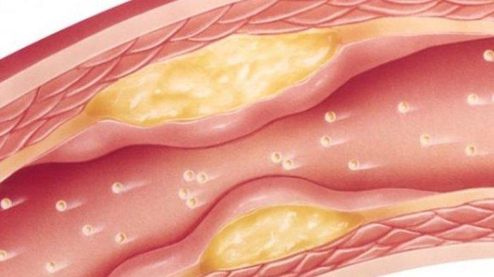 ilustrasi penyakit kolesterol