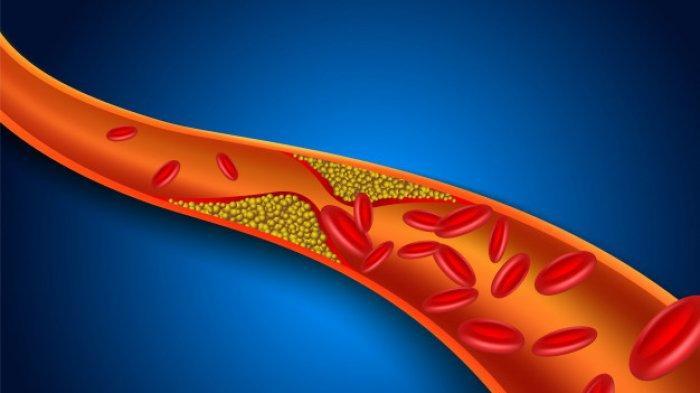 Dr. dr. Tan Shot Yen, M.Hum Beberkan Fakta-fakta Kolesterol bagi Tubuh Manusia