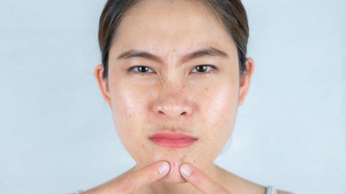 ilustrasi kulit berminyak akibat konsumsi makanan yang tidak sehat