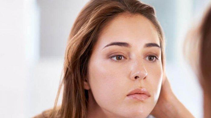 Faktor Gaya Hidup, Genetik, dan Usia dapat Mempengaruhi Produksi Minyak Berlebih pada Wajah