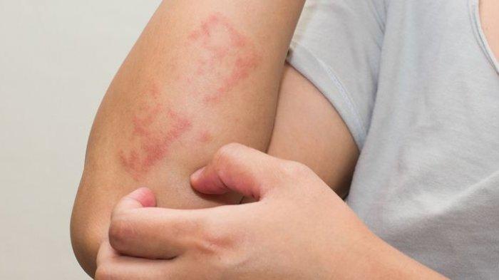 Apa Itu Dermatitis Atopik? Simak Penjelasan dari Dokter Berikut Ini