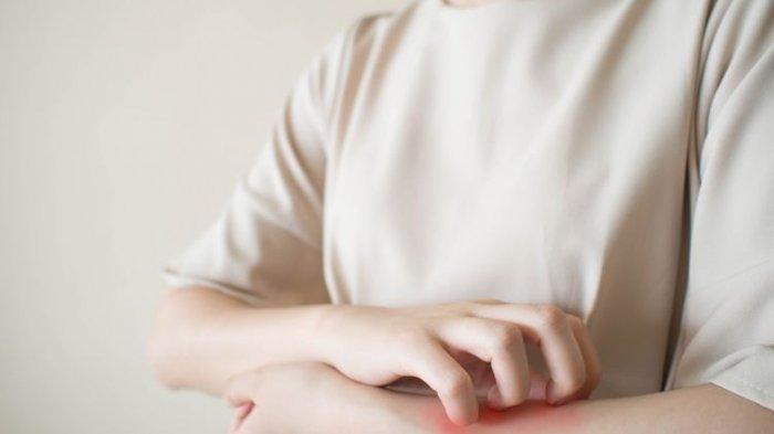 ilustrasi kulit gatal