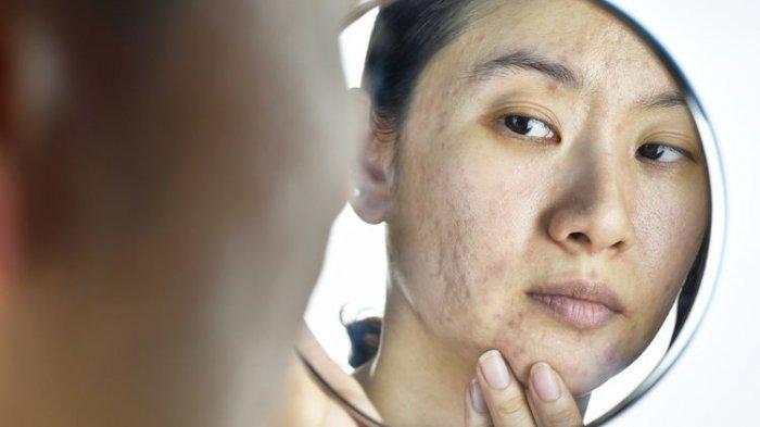 ilustrasi kulit tak sehat, simak ulasan dr. Lusiyanti, M.Med., Sp.KK