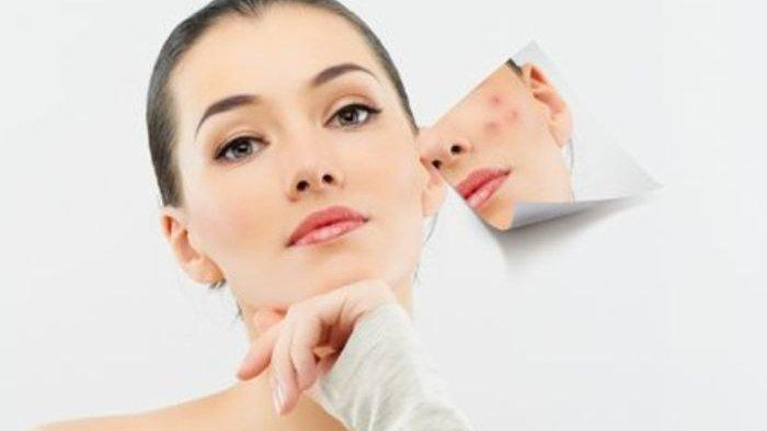 Pengaruh  Makanan Terhadap Munculnya Acne Vulgaris yang Disampaikan oleh dr. Ammarilis