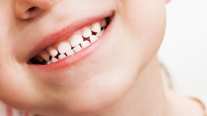 Masalah Apa yang Bisa Muncul ketika Menyepelekan Perawatan Gigi Sejak Dini Dok?