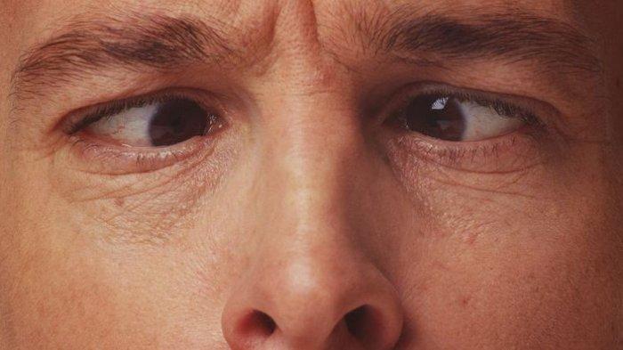 ilustrasi masalah pada mata