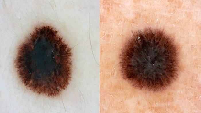ilustrasi mengalami kanker kulit melanoma