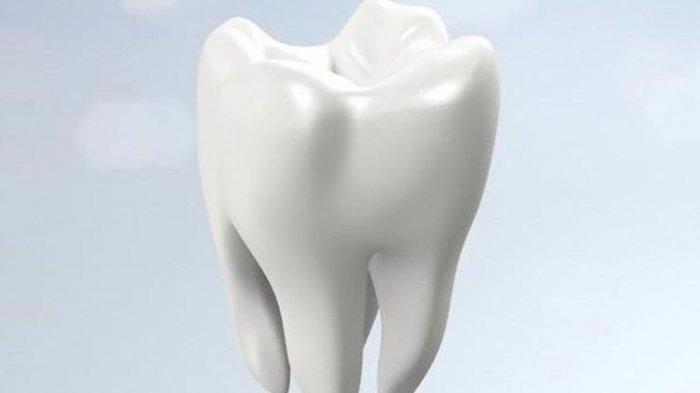 Dokter Jelaskan Penyebab Gigi Sensitif yang Harus Dihindari
