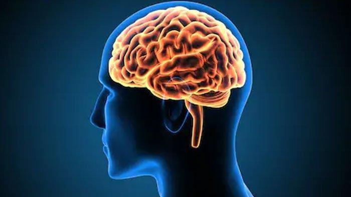 Waspadai Gejala Abses Otak atau Penumpukan Nanah yang Dapat Berdampak Pada Mental