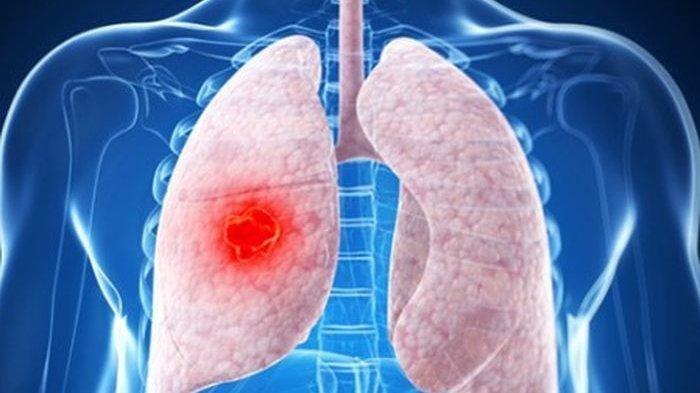 Perokok Pasif Beresiko Mengalami Penyakit Paru Obstruktif Kronik? Berikut Penjelasan Dokter