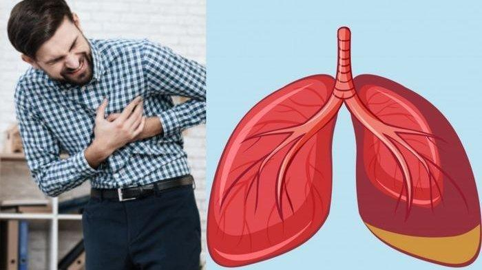 PPOK pada Perokok Aktif Memiliki Dampak Rasa Sesak Terus Menerus