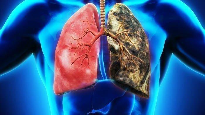 dr. Renan Hermawan, Sp.P: Emfisema dan Bronkitis Kronis Bisa Berkembang Menjadi PPOK