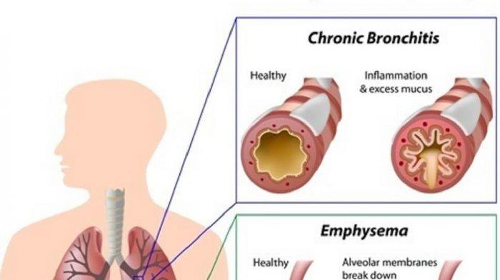ilustrasi penyakit paru obstruktif kronik