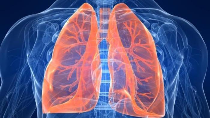 Ilustrasi - Gangguan pada paru-paru
